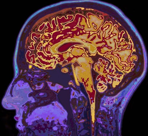 Dementia - MRI Image Of Head Showing Brain